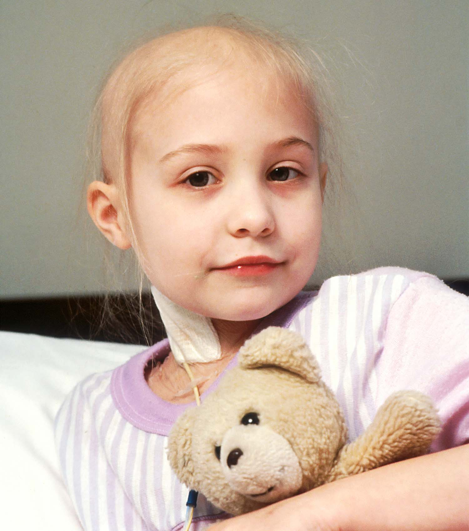Sick young girl with cancer holding teddy bear receiving chemotherapy in hospital